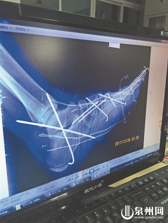 脚部受伤严重